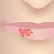 Vierte Phase von Lippenherpes